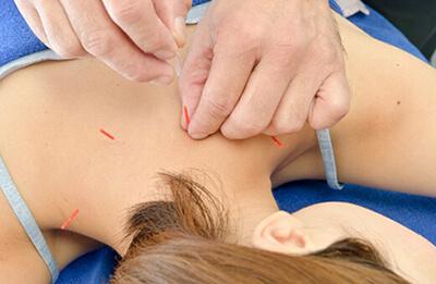 東洋医学的な鍼灸